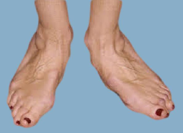 Артрит и артроз симптомы и лечение фото