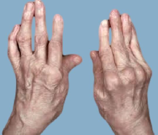 гимнастика для кистей рук при ревматоидном артрите текст. Сразу