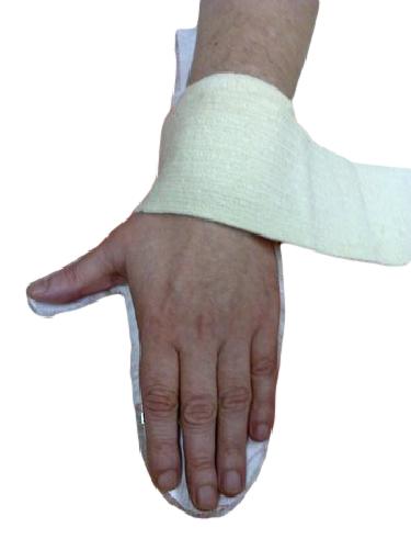 нежно фото руки после инсульта контрактуры форма