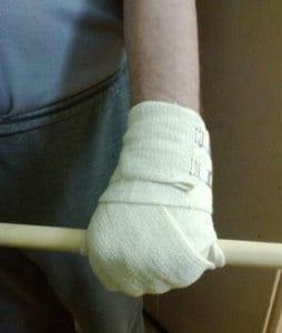 Упражнения для руки после инсульта.