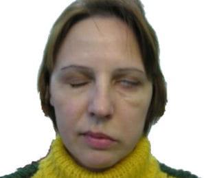Лечебная гимнастика при неврите лицевого нерва.
