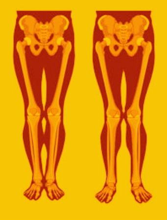 Упражнения при Х-образных искривлениях ног.